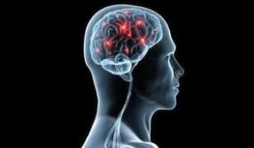 Rehabilitacja po udarze mózgu Psychoterapia po udarze - Gabinet Psychoterapeutyczny Psychofit Mikołów