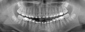 Ortodoncja - Profesjonalna opieka stomatologiczna UŚMIECHNIJ MI SIĘ Oświęcim