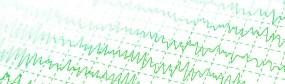 EEG Biofeedback - Centrum Umysłu - Gabinet Psychologiczny Gryfino