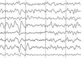 Badanie EEG dorosłych i dzieci - Krzysztof Banaszkiewicz Myślenice