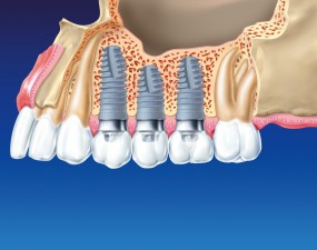 Implanty zębowe - BoaDent Marcin Krywult Katowice