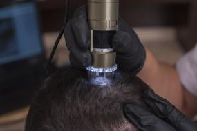 Diagnostyka skóry głowy dermotrychoskopem. - Instytut Zdrowego Włosa by Afryka Day Spa Łomianki