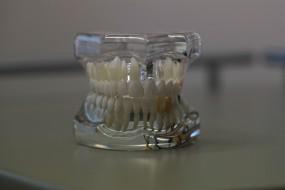 implant - M.Dent - Stomatologia s.c. Piotr Maciejasz, Izabela Helak - Maciejasz Kraków