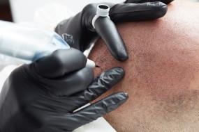 Mikropigmentacja skóry głowy - Scalpmann Hair&Head Care Warszawa
