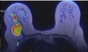 3T rezonans magnetyczny piersi - Akademickie Centrum Badań AKAMED sp. z o.o. Toruń