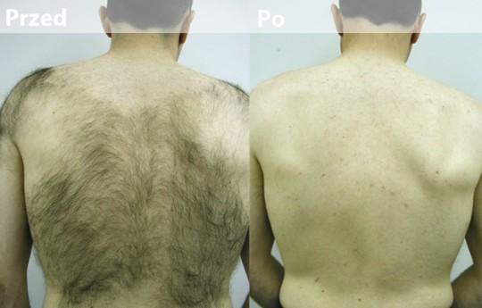 zdjęcia przed i po...